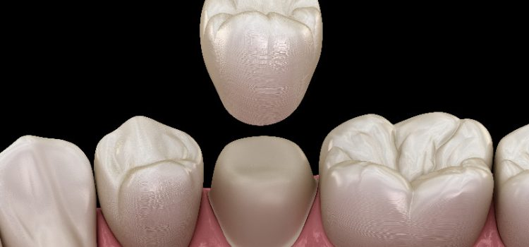 The Benefits of Getting Dental Crowns in North Oklahoma City, OK