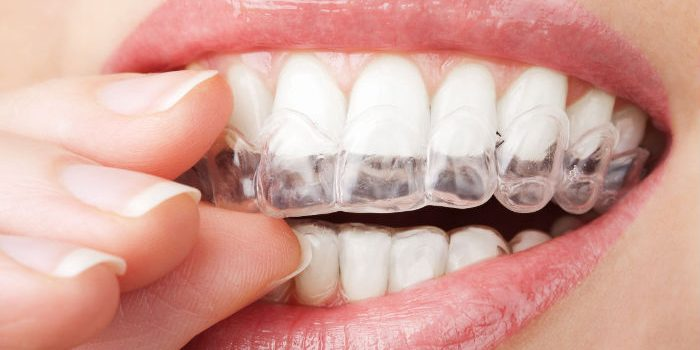 Signs That Indicate You Need to See an Orthodontist in Palm Coast